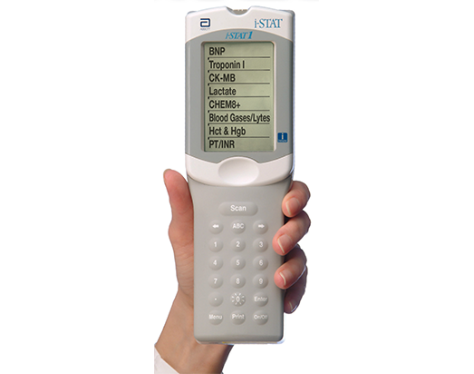 Abbott i-STAT Blood Gas Analyser